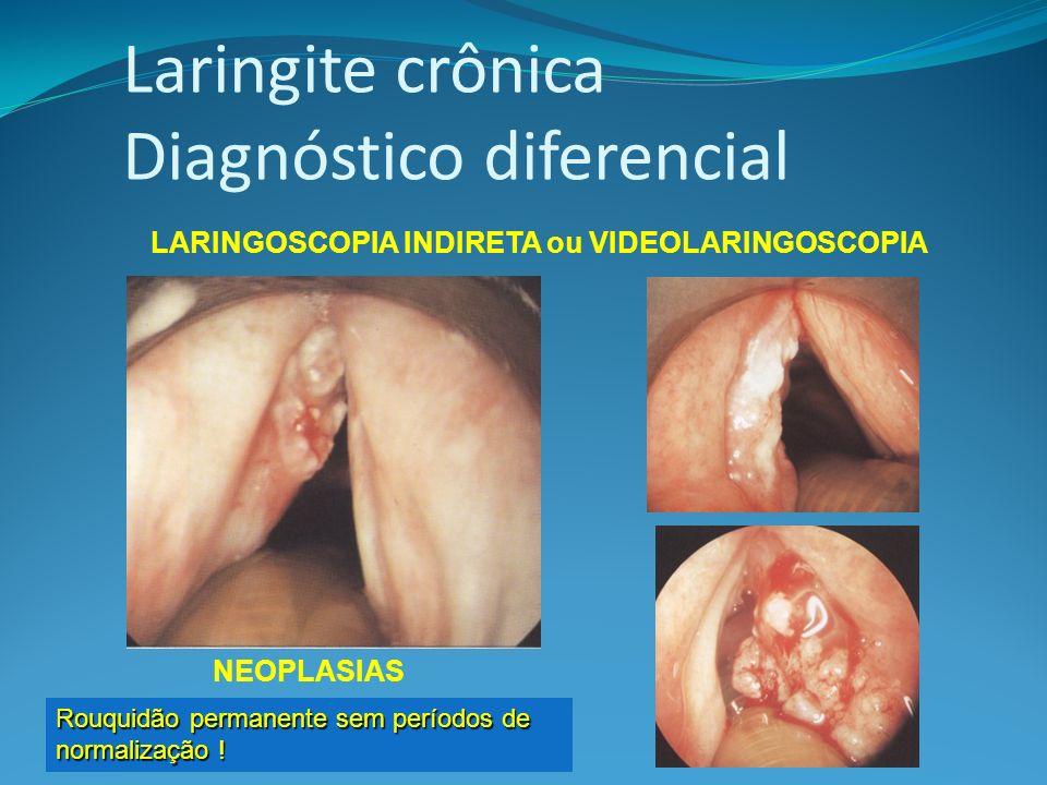 Laringite crônica Diagnóstico diferencial LARINGOSCOPIA INDIRETA ou VIDEOLARINGOSCOPIA NEOPLASIAS Rouquidão permanente sem períodos de normalização !
