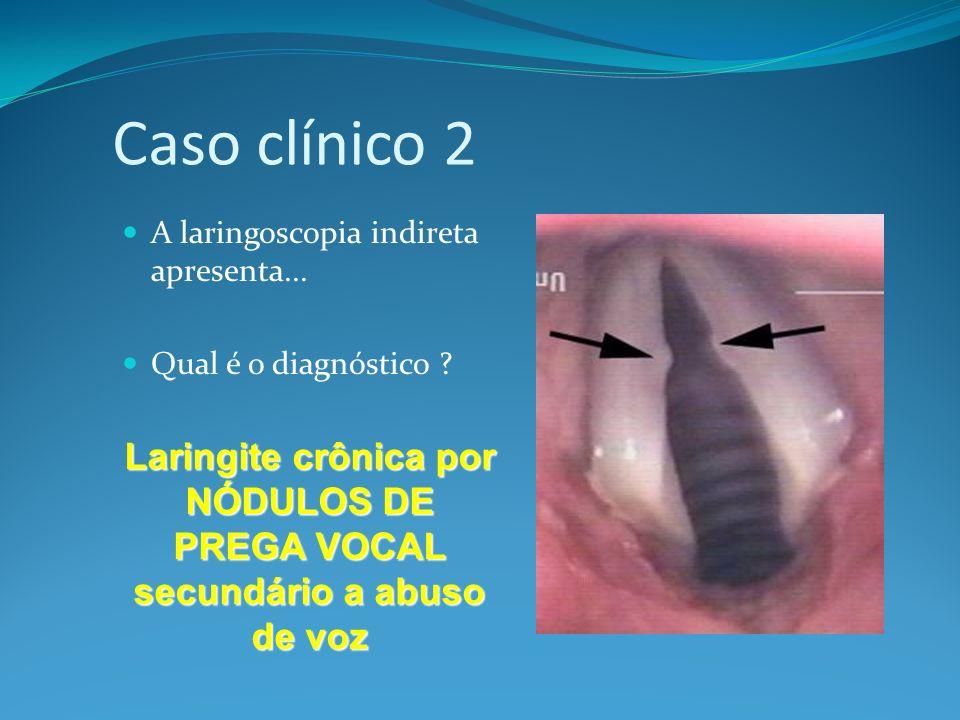 Caso clínico 2 A laringoscopia indireta apresenta... Qual é o diagnóstico ? Laringite crônica por NÓDULOS DE PREGA VOCAL secundário a abuso de voz