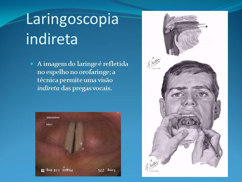 Caso clínico 2 A laringoscopia indireta apresenta...