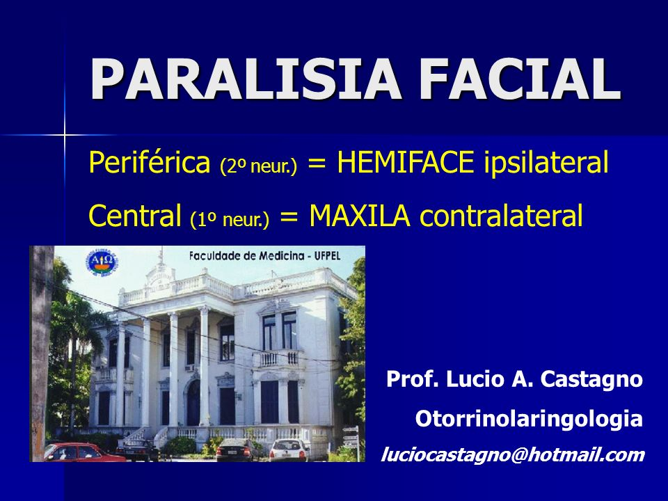PARALISIA FACIAL Prof. Lucio A. Castagno Otorrinolaringologia luciocastagno@hotmail.com Periférica (2º neur.) = HEMIFACE ipsilateral Central (1º neur.