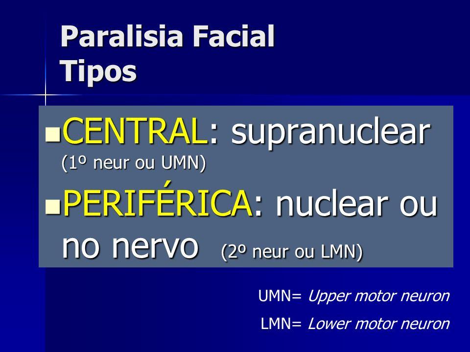 CENTRAL: supranuclear (1º neur ou UMN) CENTRAL: supranuclear (1º neur ou UMN) PERIFÉRICA: nuclear ou no nervo (2º neur ou LMN) PERIFÉRICA: nuclear ou