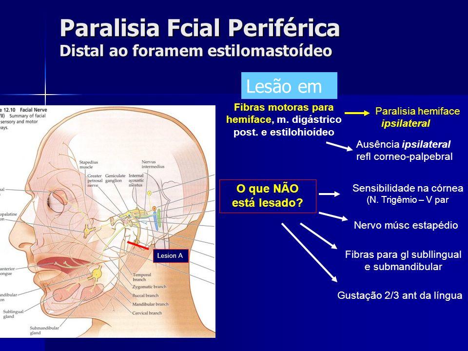 Paralisia Fcial Periférica Distal ao foramem estilomastoídeo Sensibilidade na córnea (N. Trigêmio – V par Nervo músc estapédio O que NÃO está lesado?