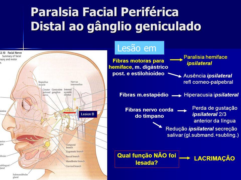 Paralsia Facial Periférica Distal ao gânglio geniculado LACRIMAÇÃO Ausência ipsilateral refl corneo-palpebral Qual função NÃO foi lesada? Fibras motor