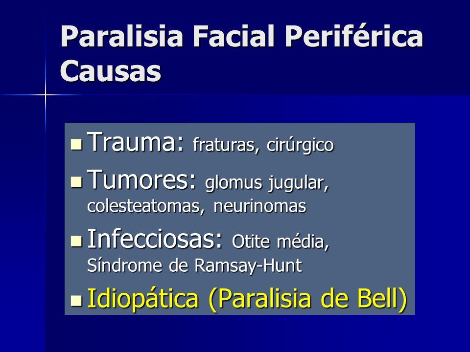 Trauma: fraturas, cirúrgico Trauma: fraturas, cirúrgico Tumores: glomus jugular, colesteatomas, neurinomas Tumores: glomus jugular, colesteatomas, neu