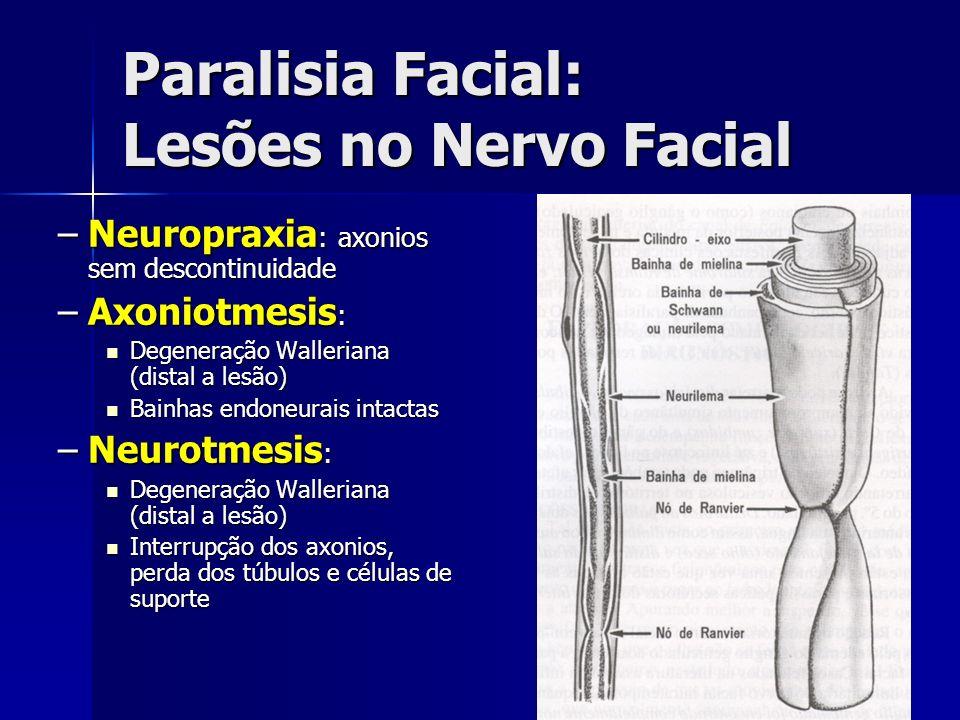 Paralisia Facial: Lesões no Nervo Facial –Neuropraxia : axonios sem descontinuidade –Axoniotmesis : Degeneração Walleriana (distal a lesão) Degeneraçã