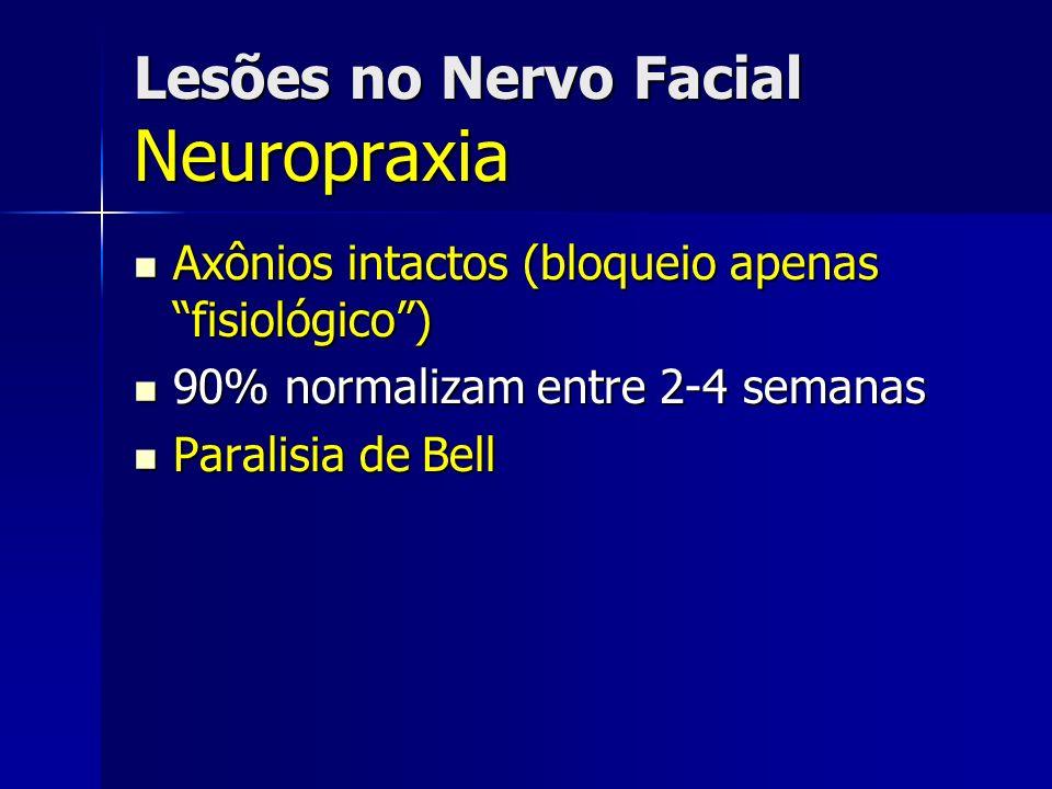 Lesões no Nervo Facial Neuropraxia Axônios intactos (bloqueio apenas fisiológico) Axônios intactos (bloqueio apenas fisiológico) 90% normalizam entre