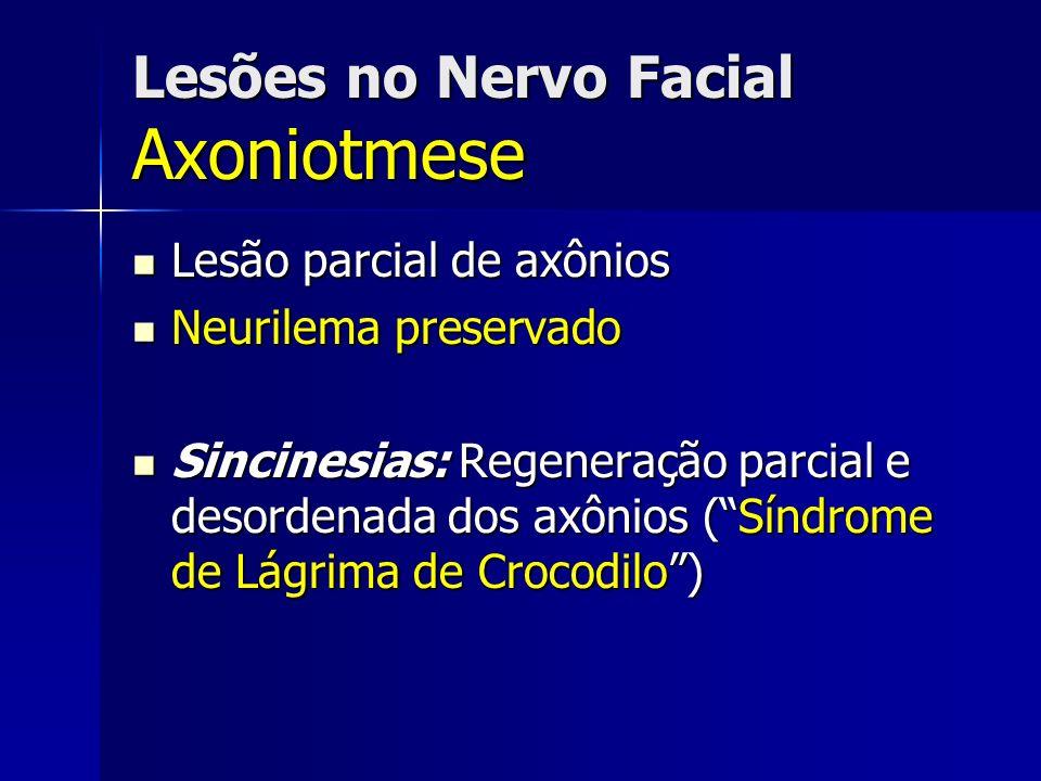 Lesões no Nervo Facial Axoniotmese Lesão parcial de axônios Lesão parcial de axônios Neurilema preservado Neurilema preservado Sincinesias: Regeneraçã