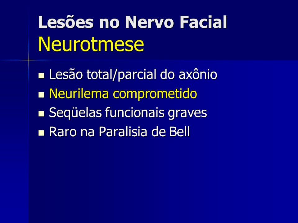 Lesões no Nervo Facial Neurotmese Lesão total/parcial do axônio Lesão total/parcial do axônio Neurilema comprometido Neurilema comprometido Seqüelas f