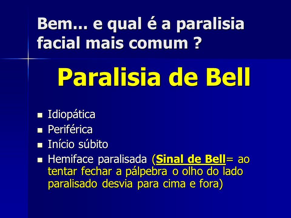 Bem... e qual é a paralisia facial mais comum ? Paralisia de Bell Idiopática Idiopática Periférica Periférica Início súbito Início súbito Hemiface par