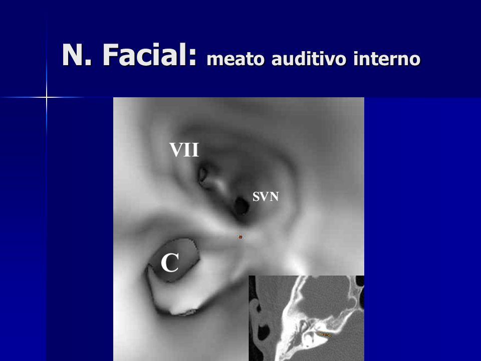 N. Facial: meato auditivo interno