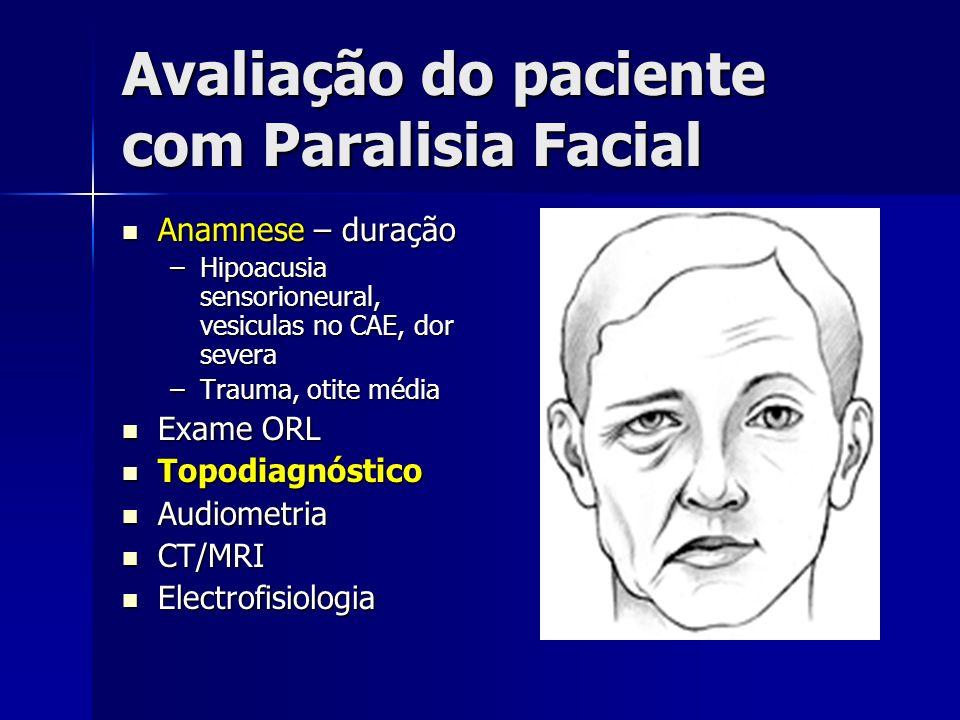 Avaliação do paciente com Paralisia Facial Anamnese – duração Anamnese – duração –Hipoacusia sensorioneural, vesiculas no CAE, dor severa –Trauma, oti