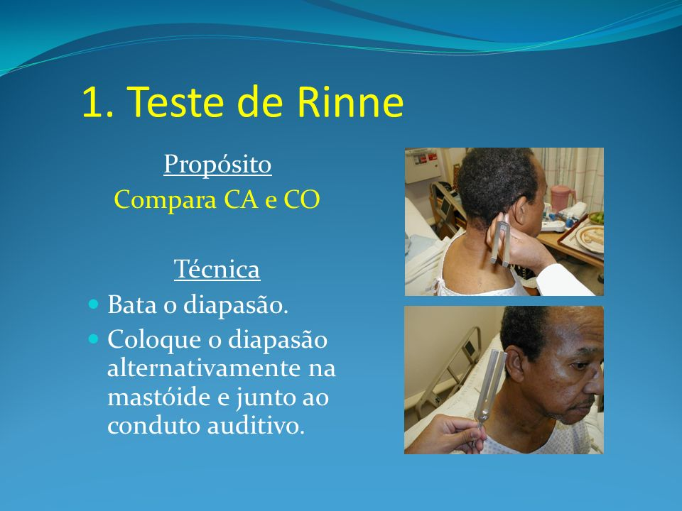 1. Teste de Rinne Propósito Compara CA e CO Técnica Bata o diapasão. Coloque o diapasão alternativamente na mastóide e junto ao conduto auditivo.