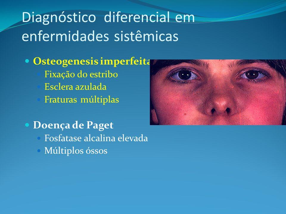 Diagnóstico diferencial em enfermidades sistêmicas Osteogenesis imperfeita Fixação do estribo Esclera azulada Fraturas múltiplas Doença de Paget Fosfa