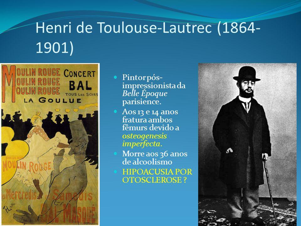 Henri de Toulouse-Lautrec (1864- 1901) Pintor pós- impressionista da Belle Époque parisience. Aos 13 e 14 anos fratura ambos fêmurs devido a osteogene
