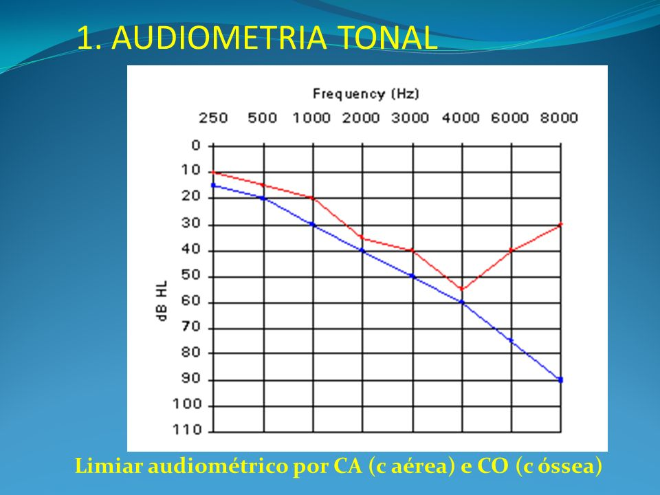 1. AUDIOMETRIA TONAL Limiar audiométrico por CA (c aérea) e CO (c óssea)