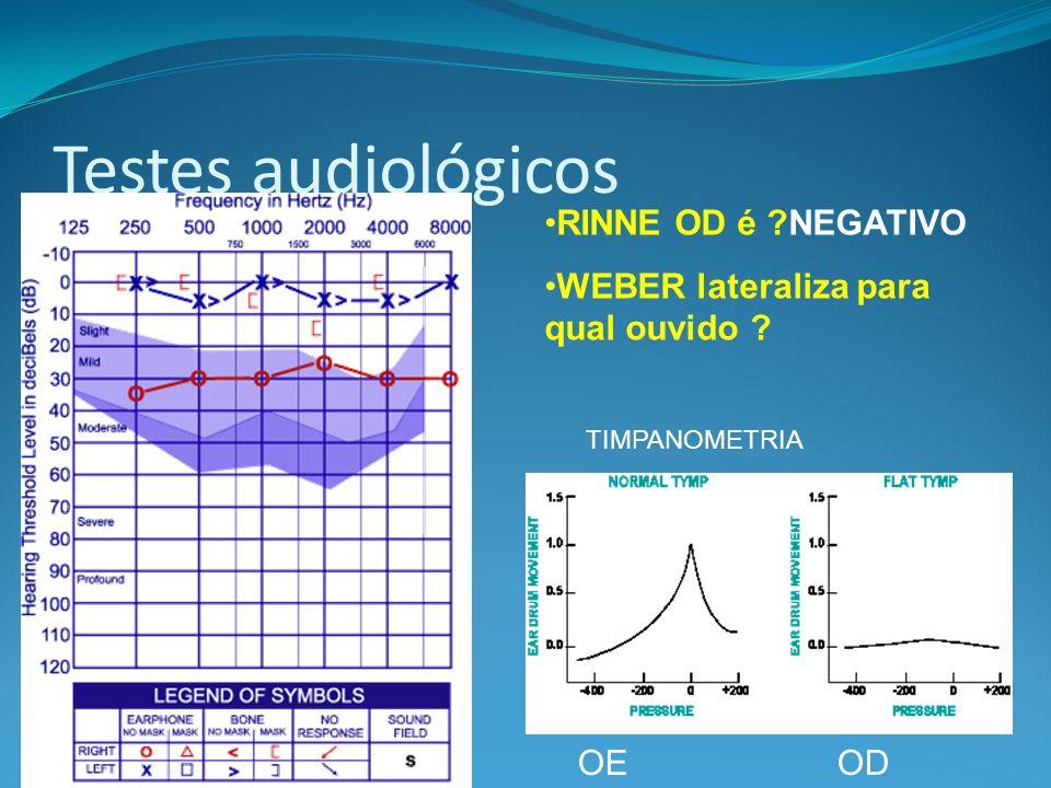 Testes audiológicos OE OD RINNE OD é ?NEGATIVO WEBER lateraliza para qual ouvido ? TIMPANOMETRIA