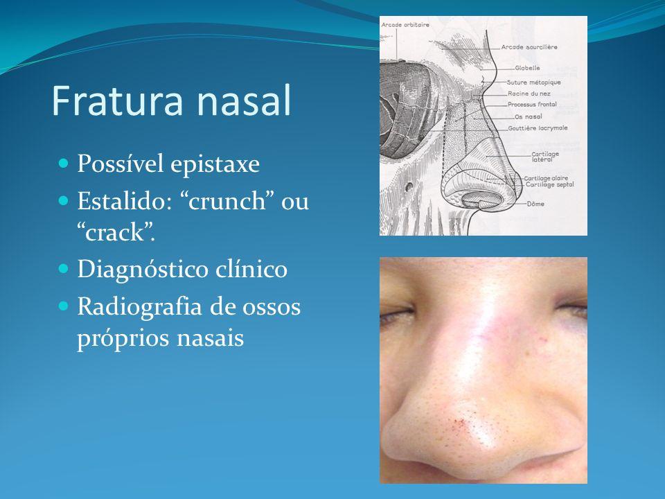 Fratura nasal Possível epistaxe Estalido: crunch ou crack. Diagnóstico clínico Radiografia de ossos próprios nasais