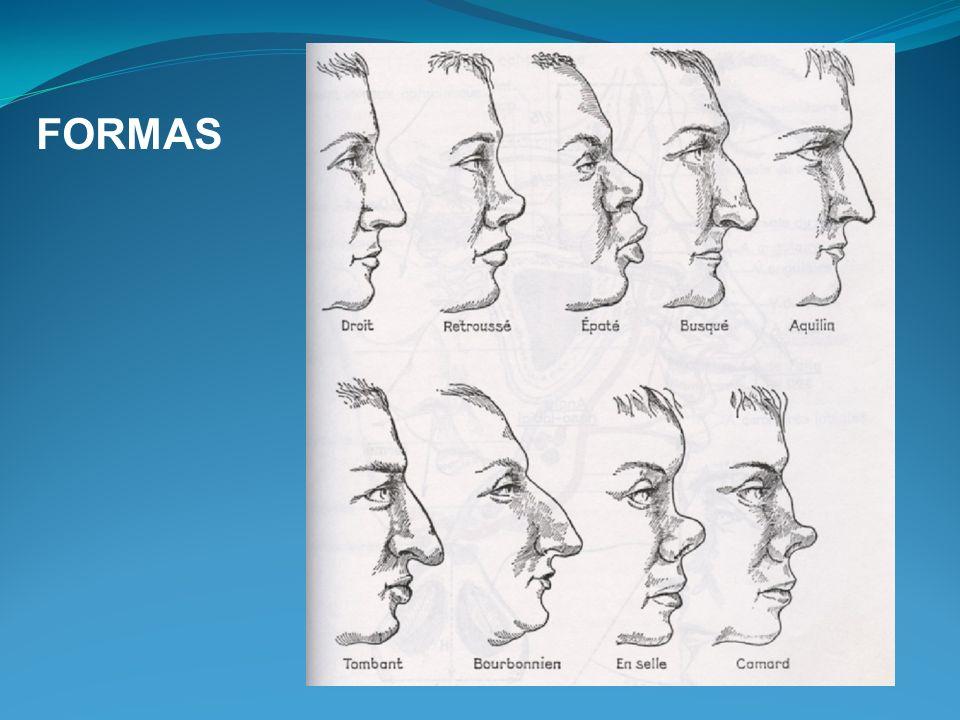 Fratura nasal: Exame físico Palpação do dorso do nariz e rebordo orbitário Avaliar crepitações, e se fragmentos justapostos ou sobrepostos Dor Rinoscopia anterior Avaliar desvio de septo, crostas ou hematoma septal