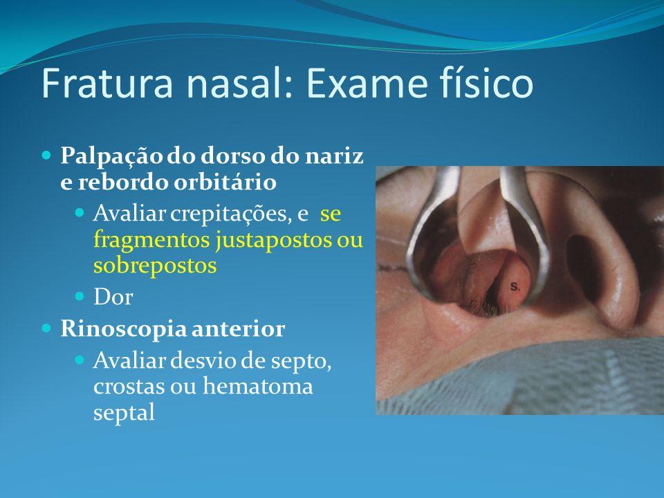 Fratura nasal: Radiografia simples Avalia em perfil os ossos próprios nasais