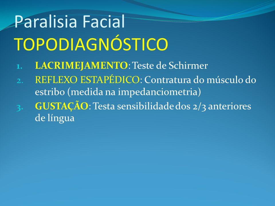 Paralisia Facial TOPODIAGNÓSTICO 1. LACRIMEJAMENTO: Teste de Schirmer 2. REFLEXO ESTAPÉDICO: Contratura do músculo do estribo (medida na impedanciomet