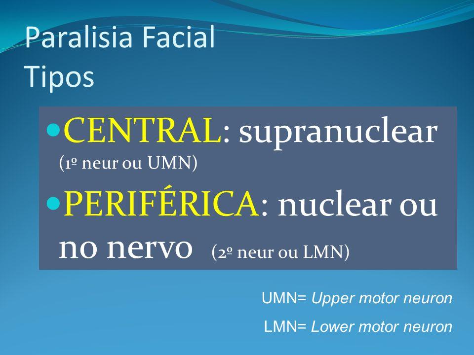 CENTRAL: supranuclear (1º neur ou UMN) PERIFÉRICA: nuclear ou no nervo (2º neur ou LMN) Paralisia Facial Tipos UMN= Upper motor neuron LMN= Lower moto