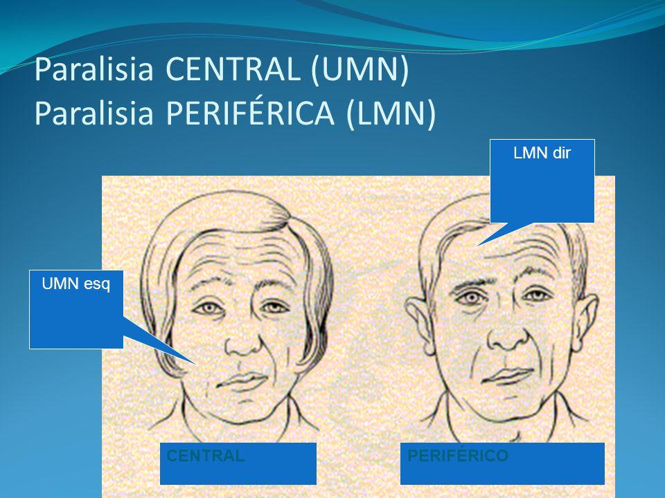 Paralisia CENTRAL (UMN) Paralisia PERIFÉRICA (LMN) CENTRALPERIFÉRICO UMN esq LMN dir