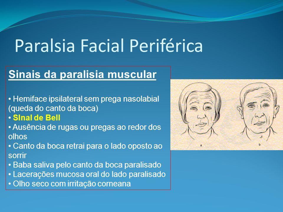 Paralsia Facial Periférica Sinais da paralisia muscular Hemiface ipsilateral sem prega nasolabial (queda do canto da boca) SInal de Bell Ausência de r