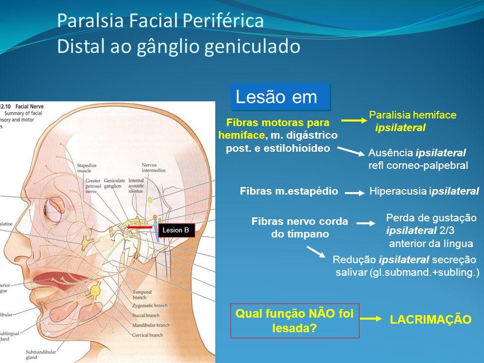 Paralsia Facial Periférica Distal ao gânglio geniculado LACRIMAÇÃO Ausência ipsilateral refl corneo-palpebral Qual função NÃO foi lesada.