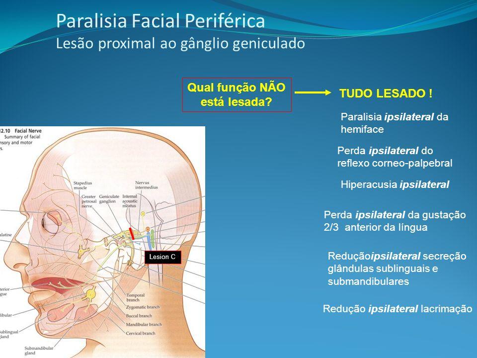 Paralisia Facial Periférica Lesão proximal ao gânglio geniculado TUDO LESADO ! Perda ipsilateral do reflexo corneo-palpebral Paralisia ipsilateral da