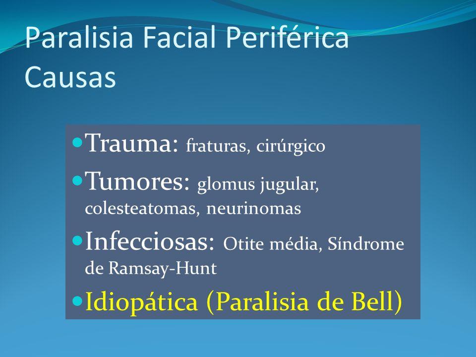 Trauma: fraturas, cirúrgico Tumores: glomus jugular, colesteatomas, neurinomas Infecciosas: Otite média, Síndrome de Ramsay-Hunt Idiopática (Paralisia de Bell) Paralisia Facial Periférica Causas