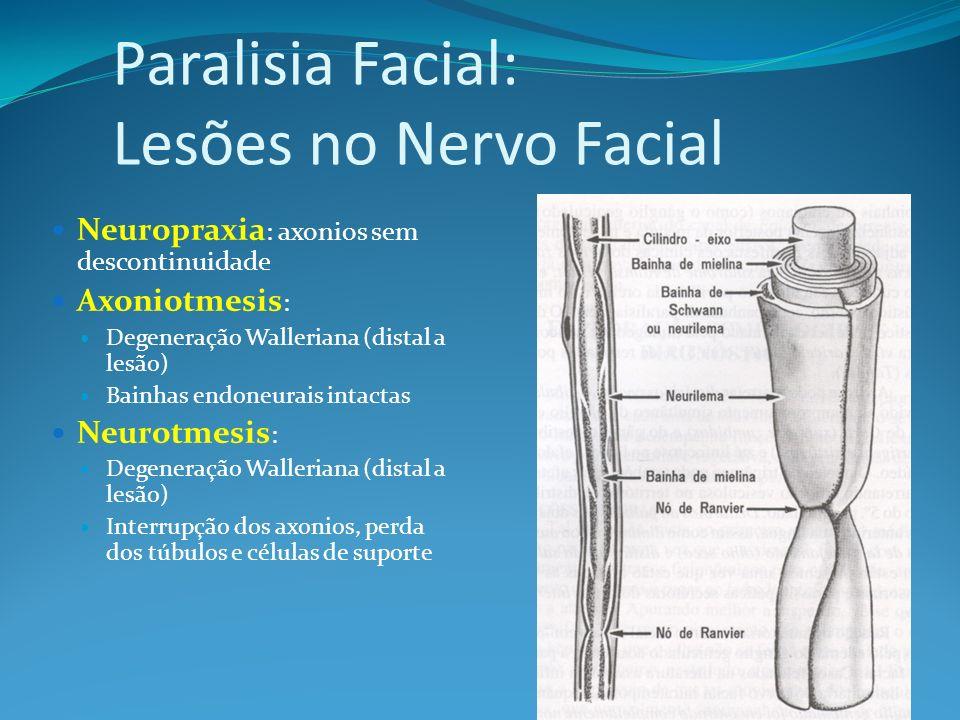 Paralisia Facial: Lesões no Nervo Facial Neuropraxia : axonios sem descontinuidade Axoniotmesis : Degeneração Walleriana (distal a lesão) Bainhas endoneurais intactas Neurotmesis : Degeneração Walleriana (distal a lesão) Interrupção dos axonios, perda dos túbulos e células de suporte