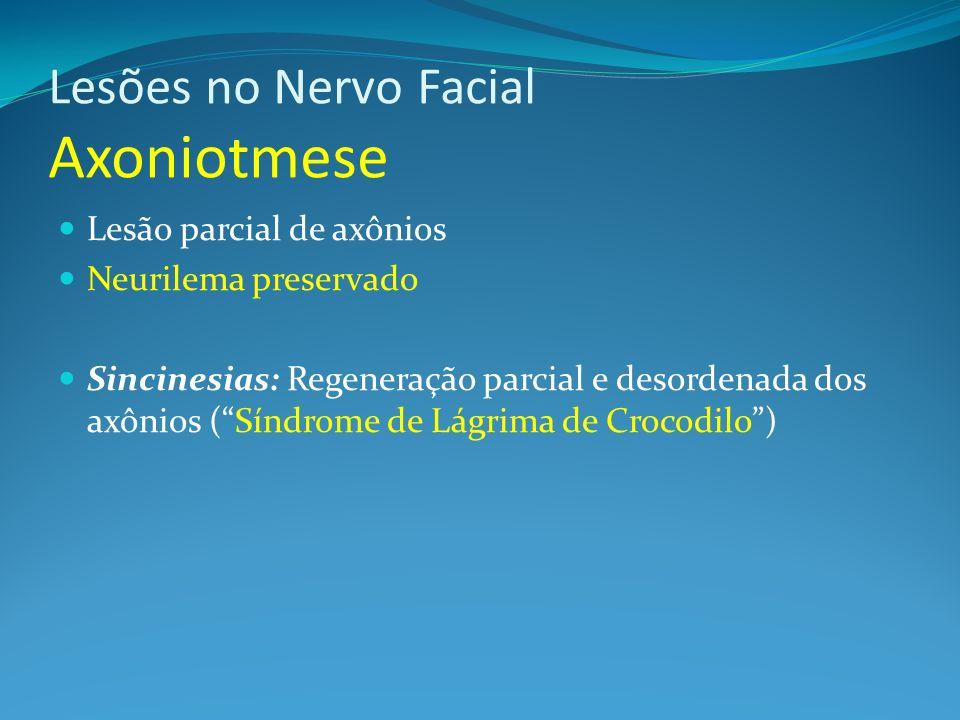 Lesões no Nervo Facial Axoniotmese Lesão parcial de axônios Neurilema preservado Sincinesias: Regeneração parcial e desordenada dos axônios (Síndrome de Lágrima de Crocodilo)