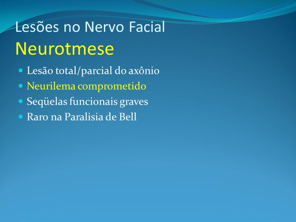 Lesões no Nervo Facial Neurotmese Lesão total/parcial do axônio Neurilema comprometido Seqüelas funcionais graves Raro na Paralisia de Bell