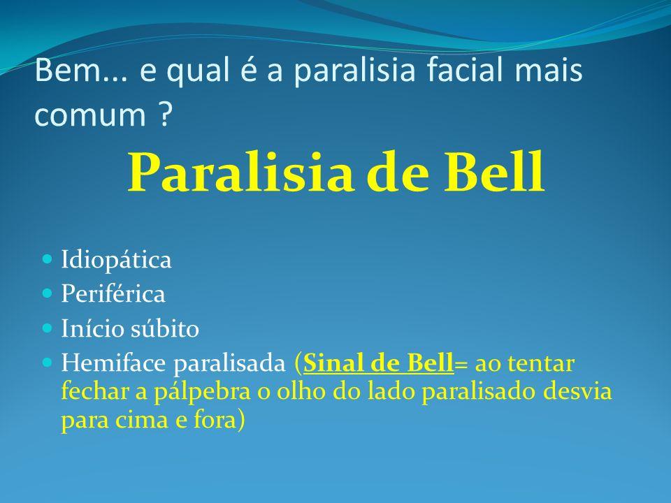 Bem... e qual é a paralisia facial mais comum ? Paralisia de Bell Idiopática Periférica Início súbito Hemiface paralisada (Sinal de Bell= ao tentar fe