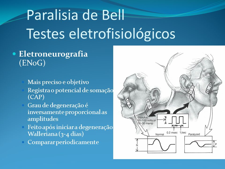 Eletroneurografia (ENoG) Mais preciso e objetivo Registra o potencial de somação (CAP) Grau de degeneração é inversamente proporcional as amplitudes Feito após iniciar a degeneração Walleriana (3-4 dias) Comparar periodicamente Paralisia de Bell Testes eletrofisiológicos
