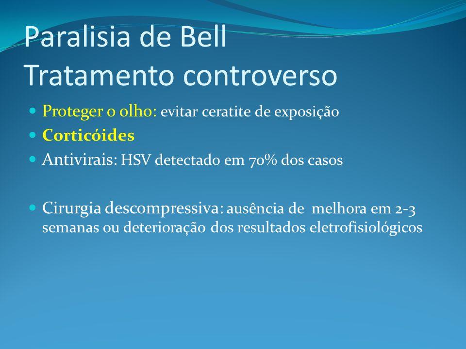 Paralisia de Bell Tratamento controverso Proteger o olho: evitar ceratite de exposição Corticóides Antivirais: HSV detectado em 70% dos casos Cirurgia