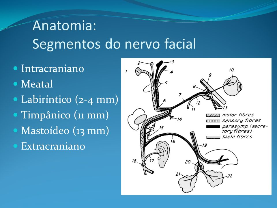Anatomia: Segmentos do nervo facial Intracraniano Meatal Labiríntico (2-4 mm) Timpânico (11 mm) Mastoídeo (13 mm) Extracraniano