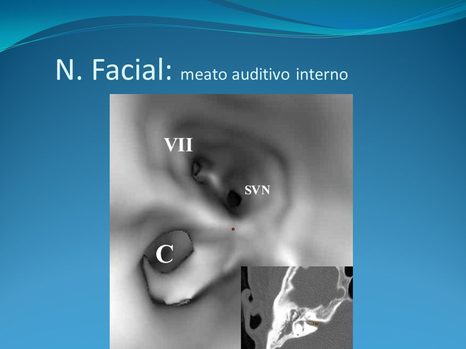 Paralisia Fcial Periférica Distal ao foramem estilomastoídeo Sensibilidade na córnea (N.