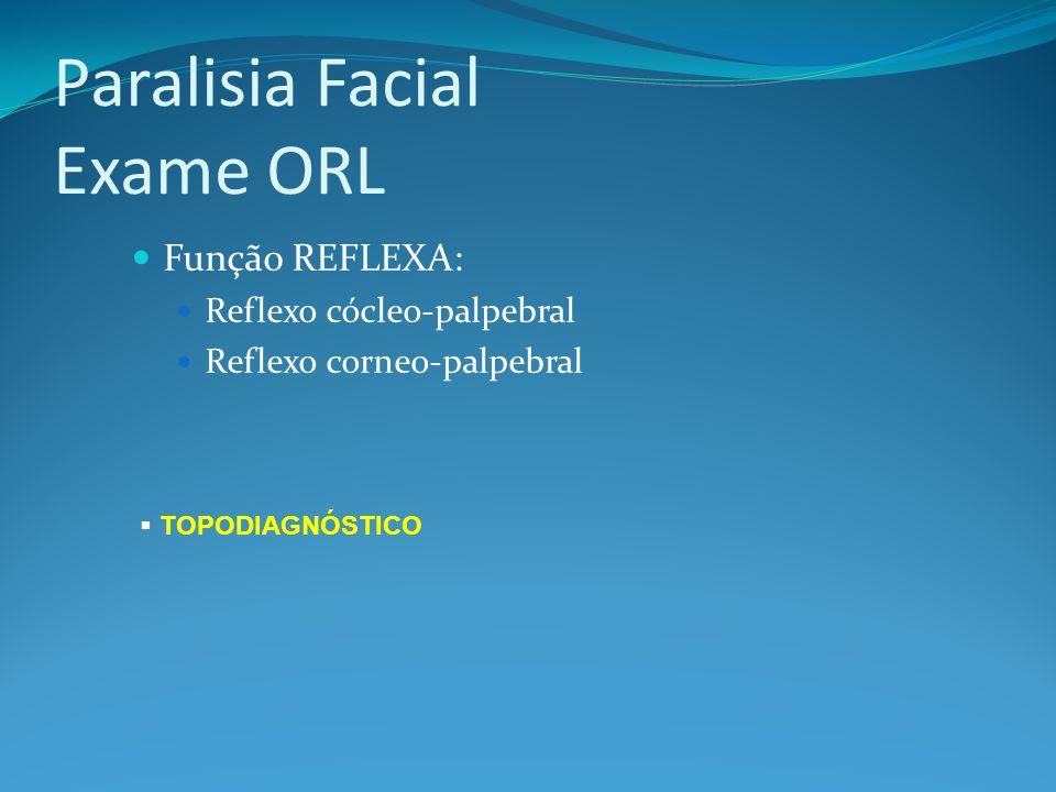Paralisia Facial TOPODIAGNÓSTICO 1.LACRIMEJAMENTO: Teste de Schirmer 2.