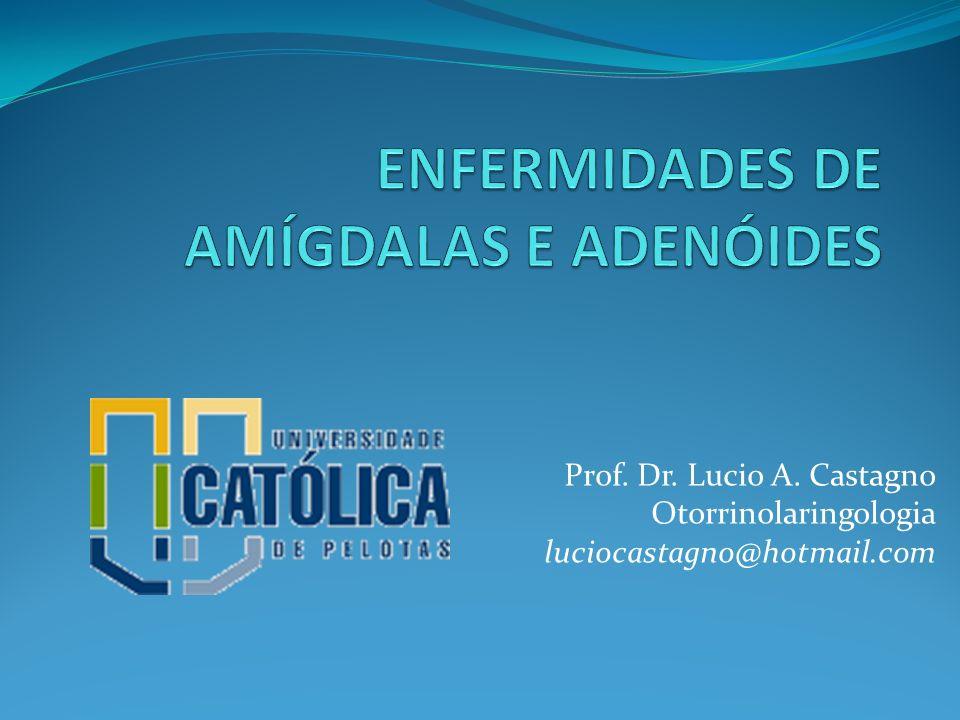 Amigdalites Complicações Abcesso periamigdaliano Linfadenite cervical Abcesso cervical Glomerulonefrite pós-estretocócica (poliartrite e oligúria com insuficiência renal 10 d após faringo-amigdalite)