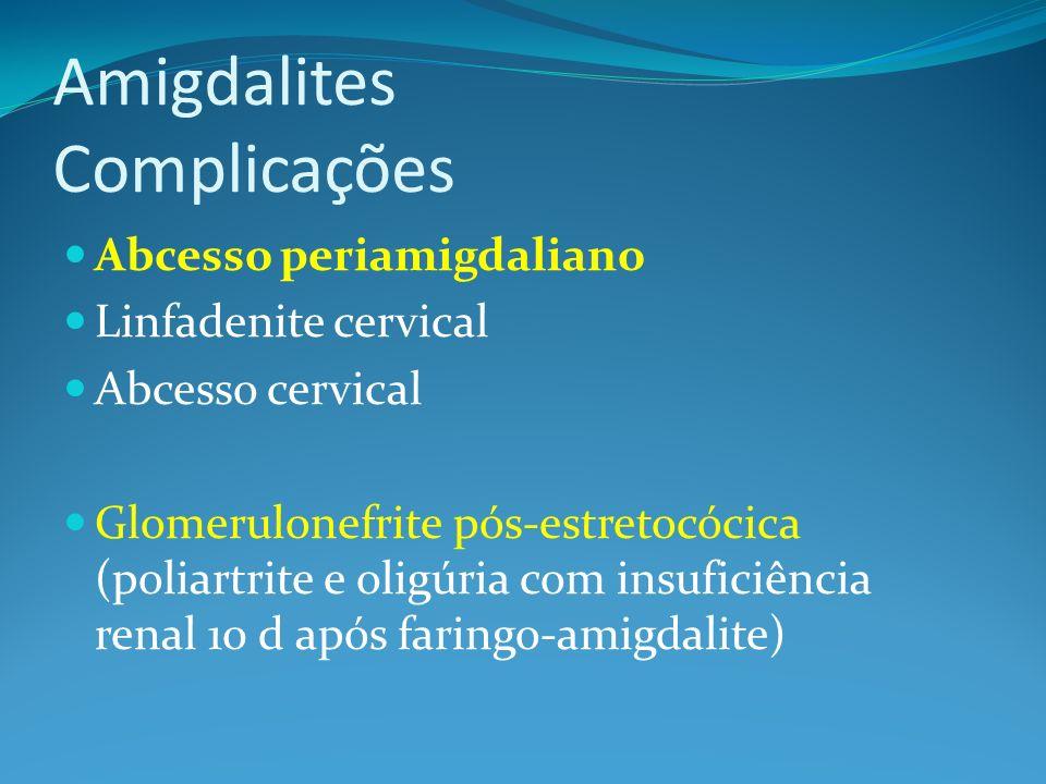 Amigdalites Complicações Abcesso periamigdaliano Linfadenite cervical Abcesso cervical Glomerulonefrite pós-estretocócica (poliartrite e oligúria com