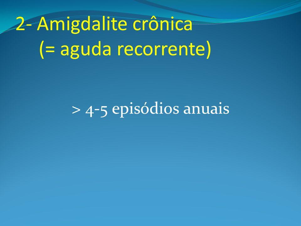 2- Amigdalite crônica (= aguda recorrente) > 4-5 episódios anuais