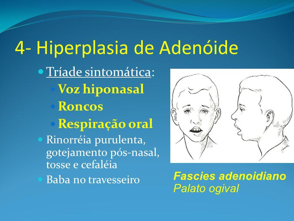 4- Hiperplasia de Adenóide Tríade sintomática: Voz hiponasal Roncos Respiração oral Rinorréia purulenta, gotejamento pós-nasal, tosse e cefaléia Baba