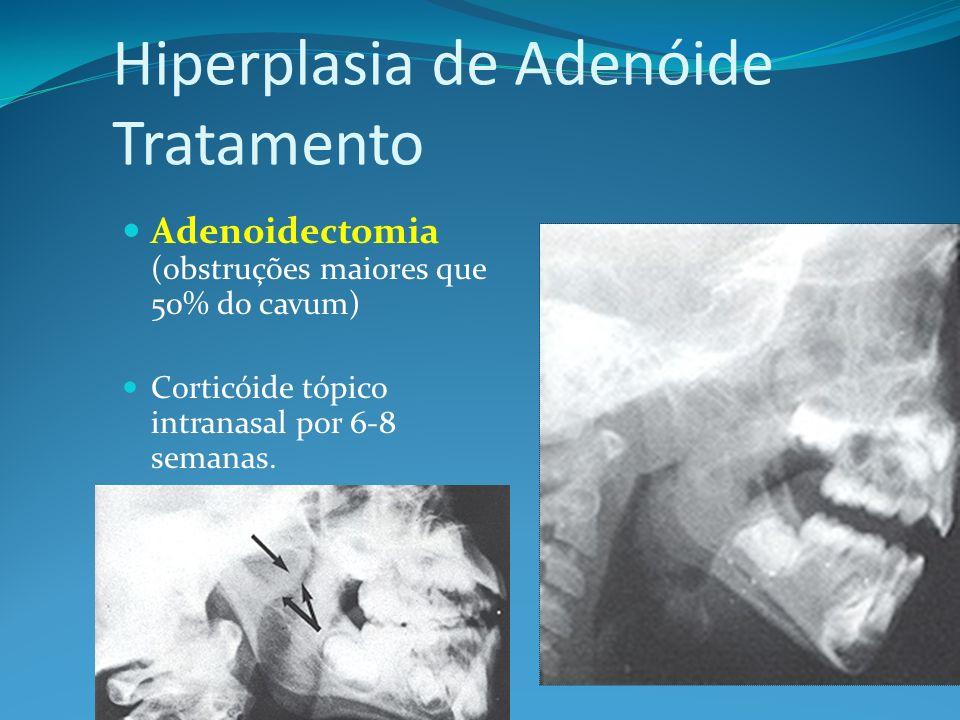 Hiperplasia de Adenóide Tratamento Adenoidectomia (obstruções maiores que 50% do cavum) Corticóide tópico intranasal por 6-8 semanas.