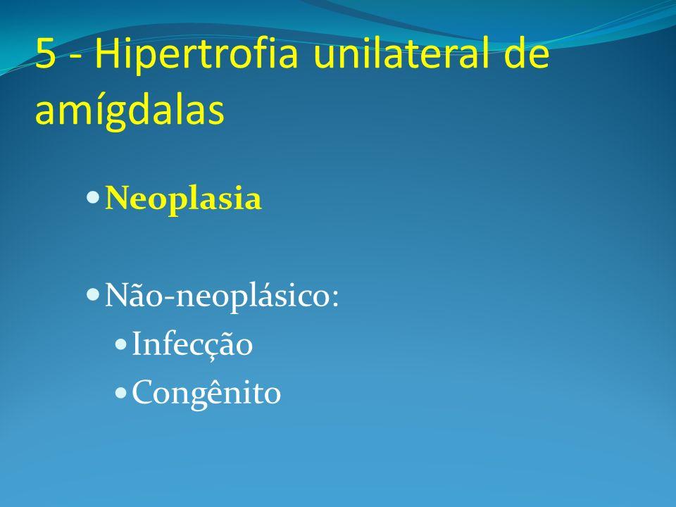 5 - Hipertrofia unilateral de amígdalas Neoplasia Não-neoplásico: Infecção Congênito