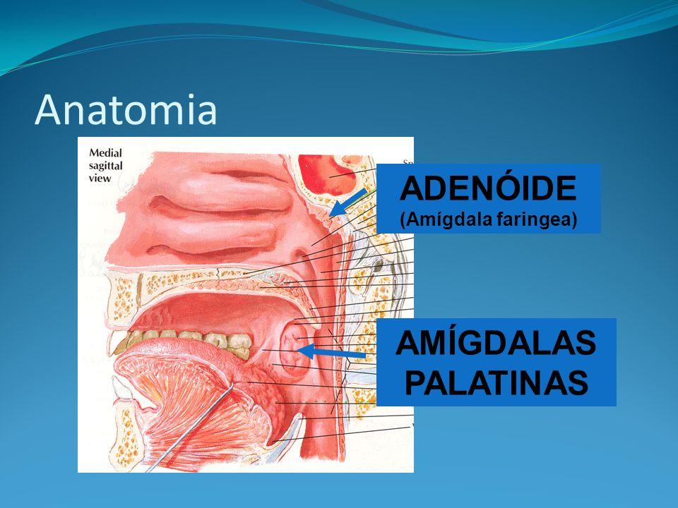 Faringites Quadro clínico Hiperemia de folículos linfóides na parede posterior do faringe