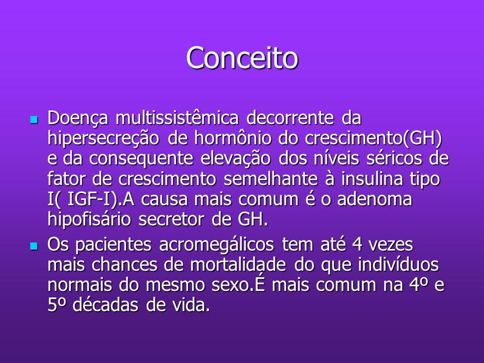 Conceito Doença multissistêmica decorrente da hipersecreção de hormônio do crescimento(GH) e da consequente elevação dos níveis séricos de fator de cr