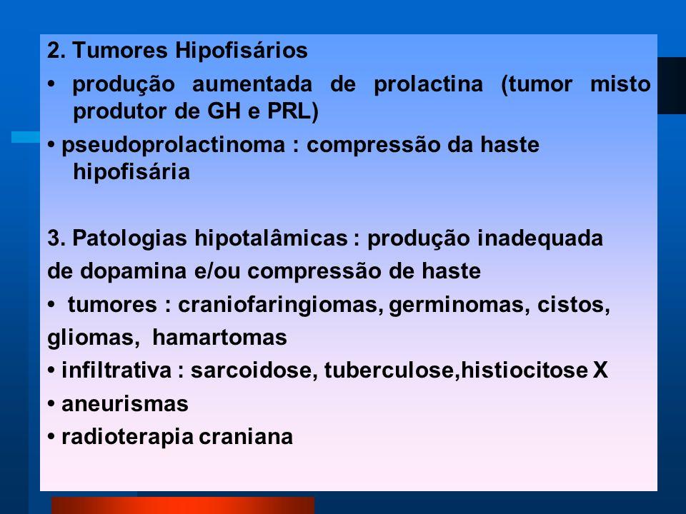 2. Tumores Hipofisários produção aumentada de prolactina (tumor misto produtor de GH e PRL) pseudoprolactinoma : compressão da haste hipofisária 3. Pa