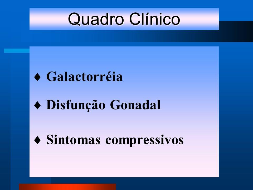 Quadro Clínico Galactorréia Disfunção Gonadal Sintomas compressivos