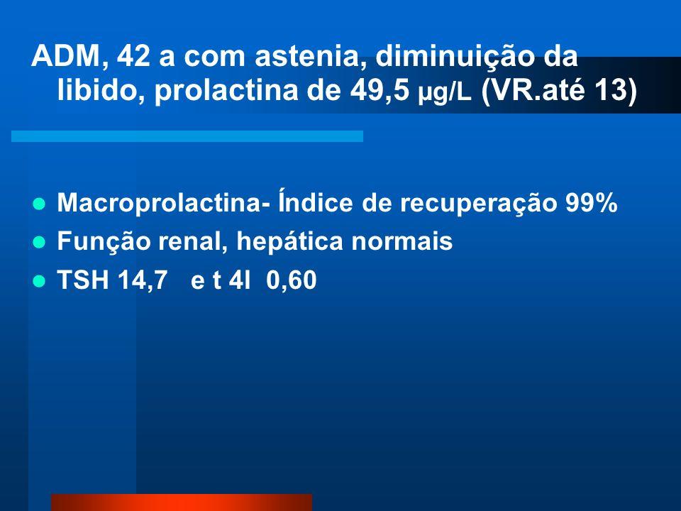 ADM, 42 a com astenia, diminuição da libido, prolactina de 49,5 µg/L (VR.até 13) Macroprolactina- Índice de recuperação 99% Função renal, hepática normais TSH 14,7 e t 4l 0,60